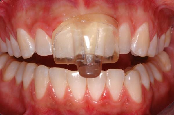 NTI - Nociceptive Trigeminal Inhibition Device   General Dentists In Kalamazoo, MI   Karen Mitchell Dentistry