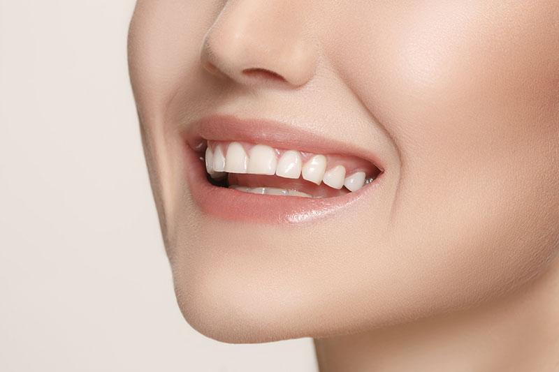 Professional Teeth Whitening   Quality Dentist Kalamazoo, MI   Karen Mitchell Dentistry