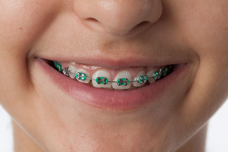 Close Up Child WIth Braces | Orthodontic Braces Dentist Kalamazoo, MI | Karen Mitchell Dentistry