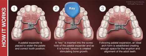 Dental Expander | Orthodontic Dentist Kalamazoo, MI | Karen Mitchell Dentistry