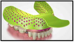 Dentla Impressions   Dentures Dentist Kalamazoo, MI   Karen Mitchell Dentistry