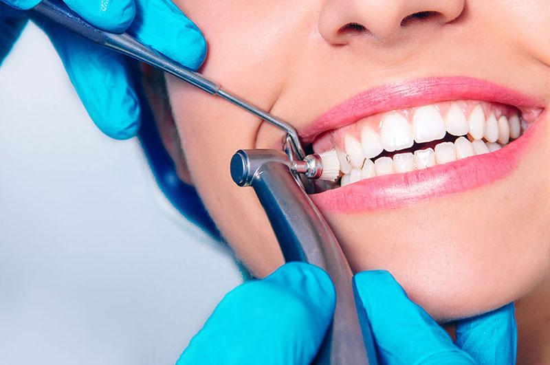Deep Teeth Cleaning   Teeth Cleanings Dentist Kalamazoo, MI   Karen Mitchell Dentistry